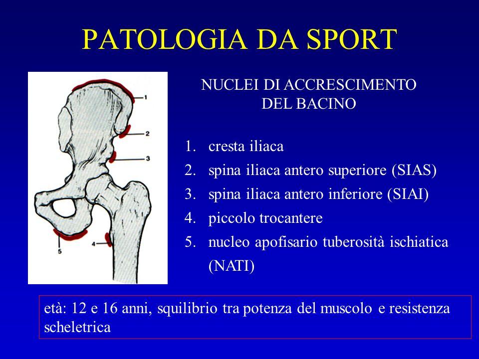PATOLOGIA DA SPORT 1.cresta iliaca 2.spina iliaca antero superiore (SIAS) 3.spina iliaca antero inferiore (SIAI) 4.piccolo trocantere 5.nucleo apofisa