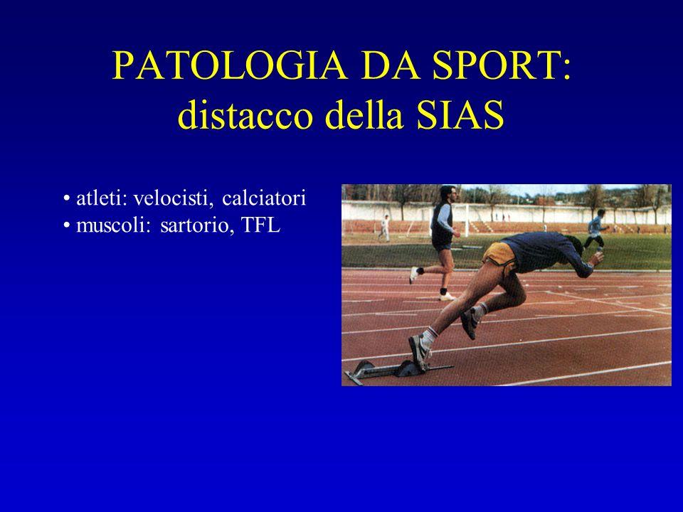 PATOLOGIA DA SPORT: distacco della SIAS atleti: velocisti, calciatori muscoli: sartorio, TFL