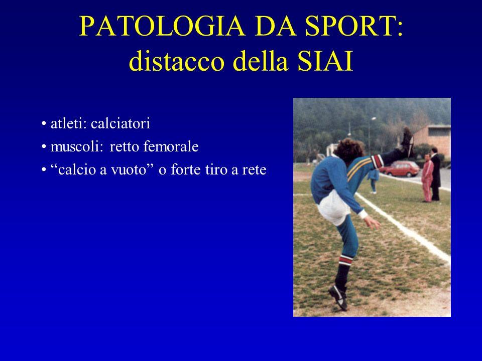 PATOLOGIA DA SPORT: distacco della SIAI atleti: calciatori muscoli: retto femorale calcio a vuoto o forte tiro a rete