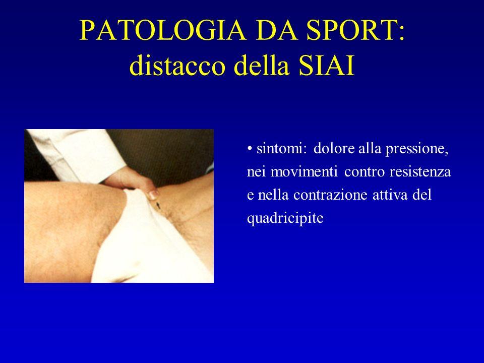 PATOLOGIA DA SPORT: distacco della SIAI sintomi: dolore alla pressione, nei movimenti contro resistenza e nella contrazione attiva del quadricipite