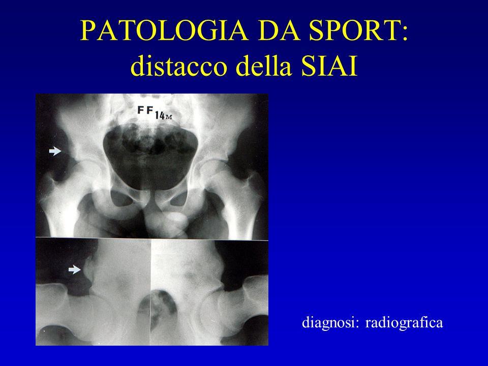 PATOLOGIA DA SPORT: distacco della SIAI diagnosi: radiografica