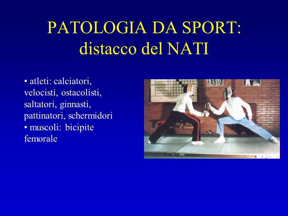 PATOLOGIA DA SPORT: distacco del NATI atleti: calciatori, velocisti, ostacolisti, saltatori, ginnasti, pattinatori, schermidori muscoli: bicipite femo