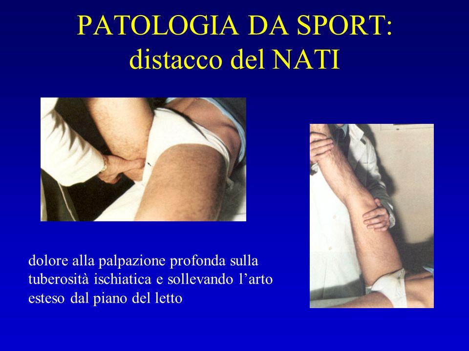 PATOLOGIA DA SPORT: distacco del NATI dolore alla palpazione profonda sulla tuberosità ischiatica e sollevando larto esteso dal piano del letto