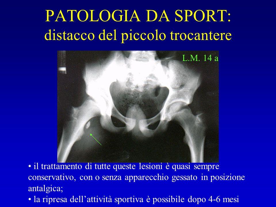 PATOLOGIA DA SPORT: distacco del piccolo trocantere L.M. 14 a il trattamento di tutte queste lesioni è quasi sempre conservativo, con o senza apparecc