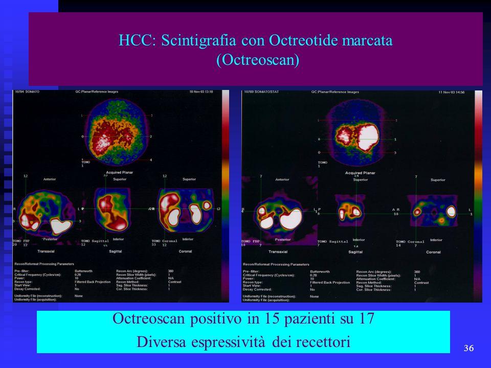 Corso di Laurea Specialistica in Medicina e Chirurgia - aa 2003 - 04 36 HCC: Scintigrafia con Octreotide marcata (Octreoscan) Octreoscan positivo in 1