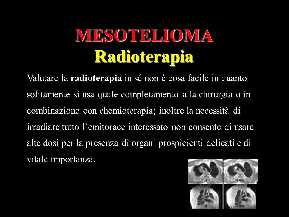 MESOTELIOMARadioterapia Valutare la radioterapia in sé non è cosa facile in quanto solitamente si usa quale completamento alla chirurgia o in combinaz