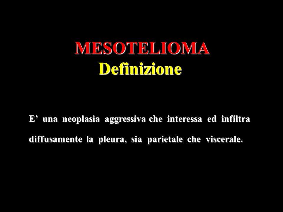 MESOTELIOMADefinizione E una neoplasia aggressiva che interessa ed infiltra diffusamente la pleura, sia parietale che viscerale.