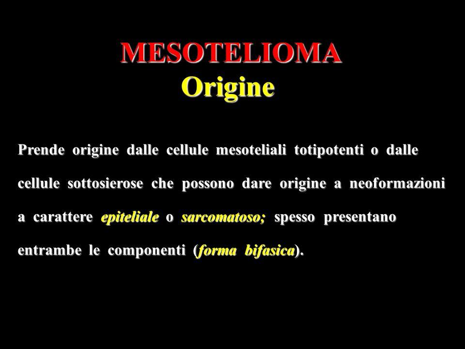 MESOTELIOMAOrigine Prende origine dalle cellule mesoteliali totipotenti o dalle cellule sottosierose che possono dare origine a neoformazioni a carattere epiteliale o sarcomatoso; spesso presentano entrambe le componenti (forma bifasica).