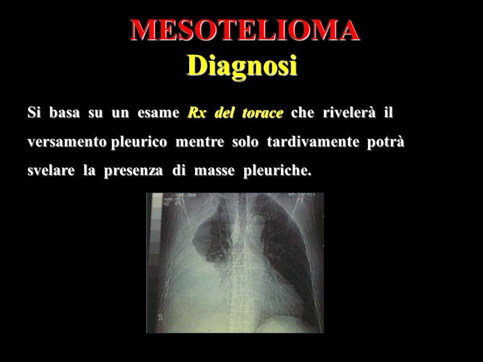 MESOTELIOMADiagnosi Si basa su un esame Rx del torace che rivelerà il versamento pleurico mentre solo tardivamente potrà svelare la presenza di masse pleuriche.
