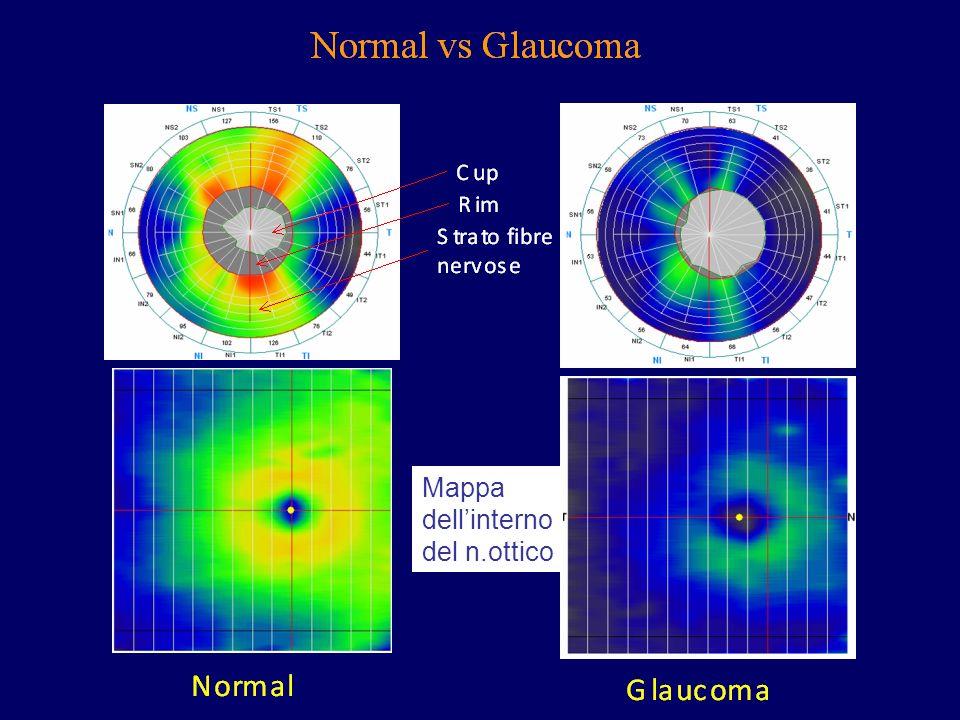 Mappa dellinterno del n.ottico