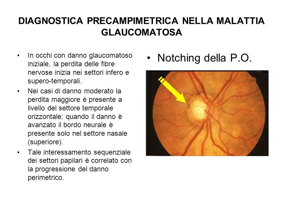 DIAGNOSTICA PRECAMPIMETRICA NELLA MALATTIA GLAUCOMATOSA In occhi con danno glaucomatoso iniziale, la perdita delle fibre nervose inizia nei settori in