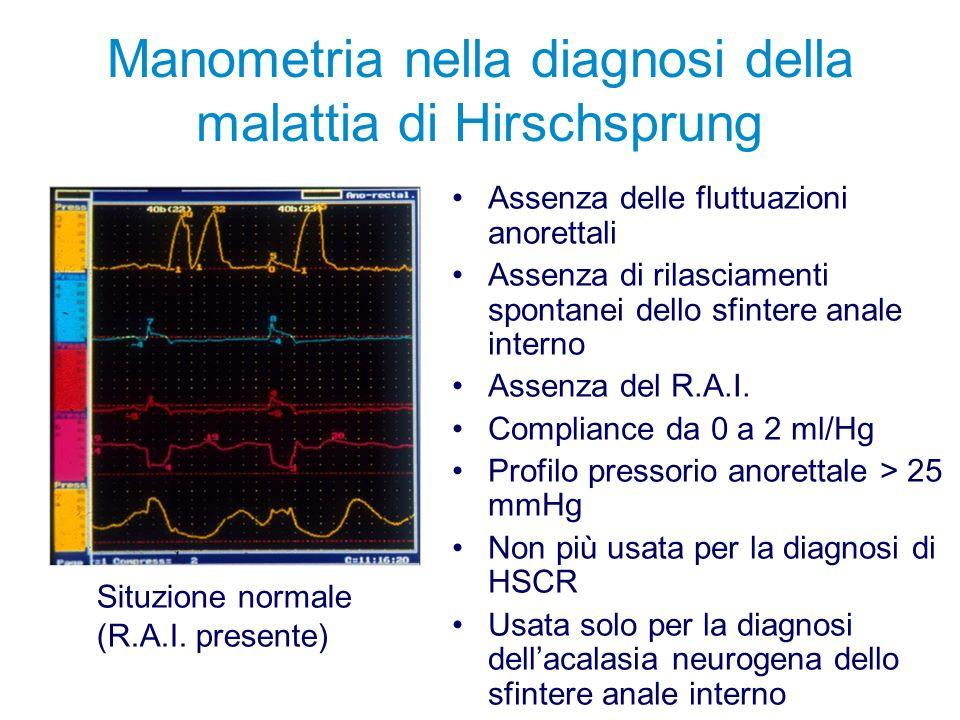 Manometria nella diagnosi della malattia di Hirschsprung Assenza delle fluttuazioni anorettali Assenza di rilasciamenti spontanei dello sfintere anale