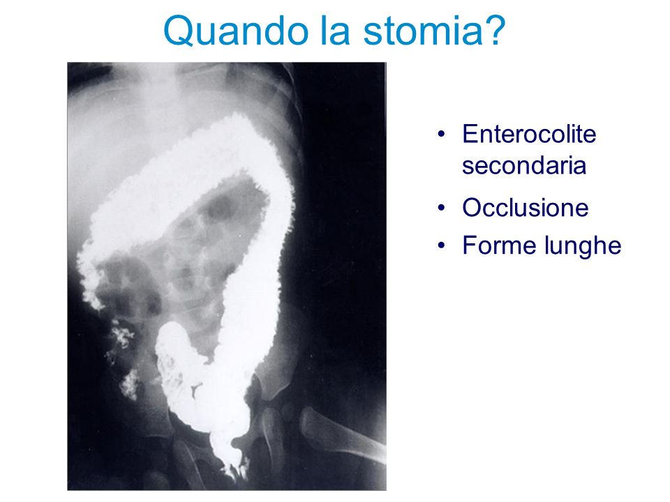 Quando la stomia? Occlusione Forme lunghe Enterocolite secondaria