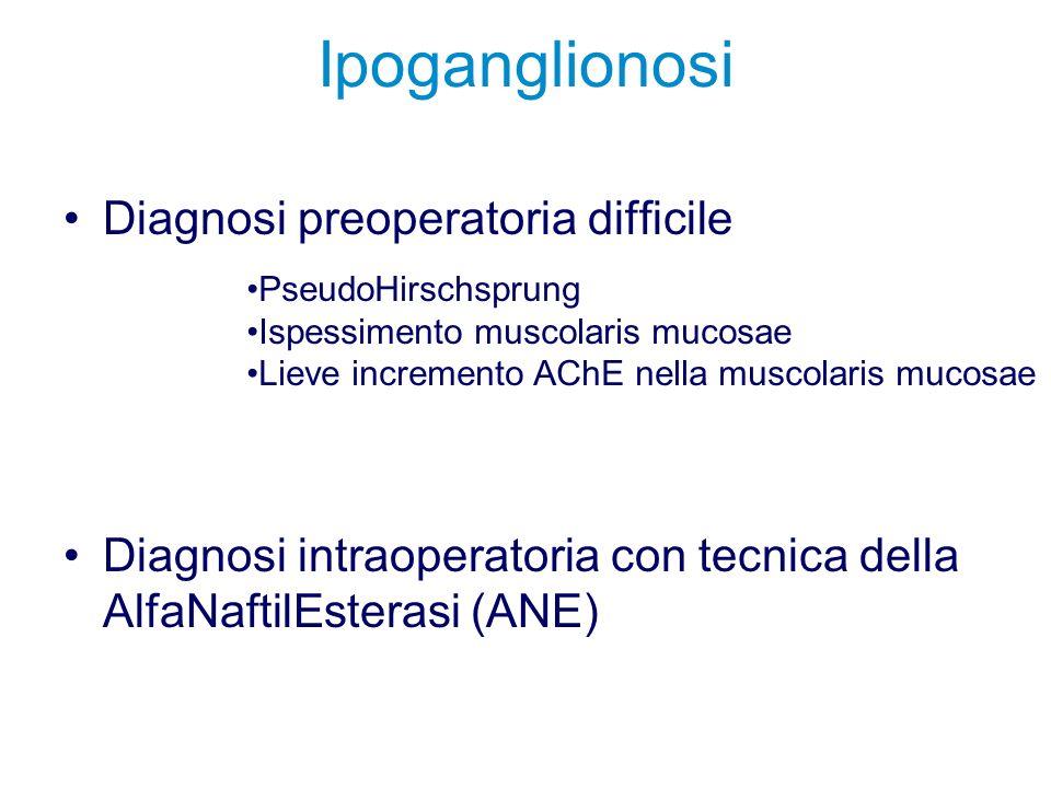 Ipoganglionosi Diagnosi preoperatoria difficile Diagnosi intraoperatoria con tecnica della AlfaNaftilEsterasi (ANE) PseudoHirschsprung Ispessimento mu