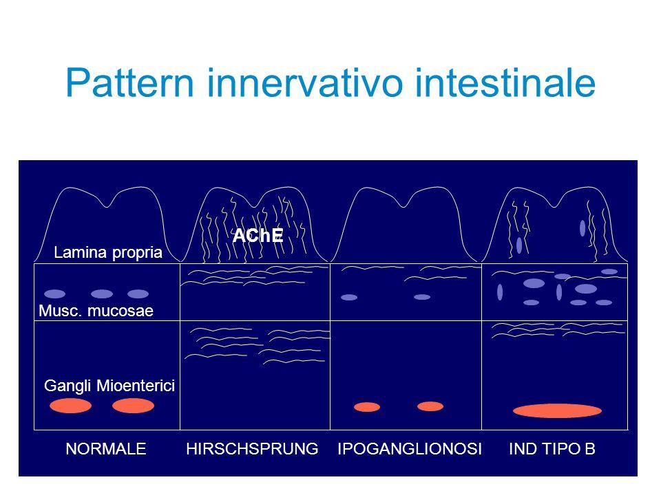 Pattern innervativo intestinale AChE Lamina propria Gangli Mioenterici Musc. mucosae NORMALEHIRSCHSPRUNGIPOGANGLIONOSIIND TIPO B