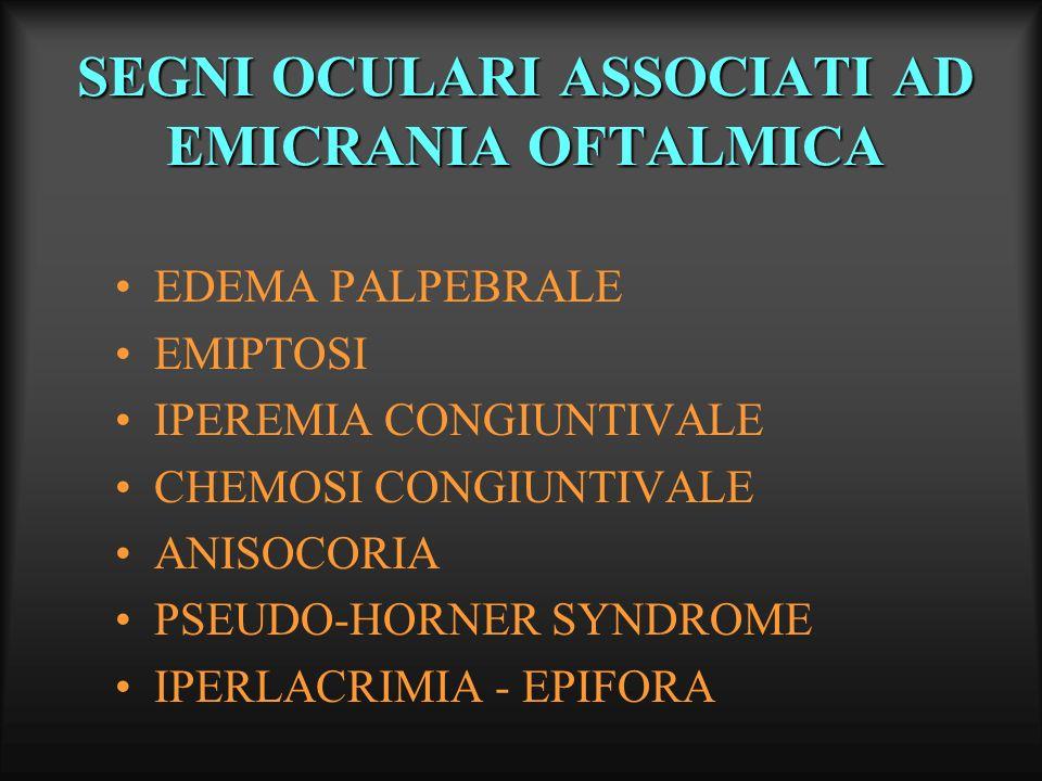 SEGNI OCULARI ASSOCIATI AD EMICRANIA OFTALMICA EDEMA PALPEBRALE EMIPTOSI IPEREMIA CONGIUNTIVALE CHEMOSI CONGIUNTIVALE ANISOCORIA PSEUDO-HORNER SYNDROM