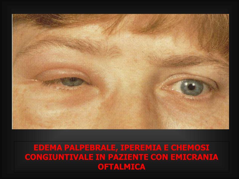 EDEMA PALPEBRALE, IPEREMIA E CHEMOSI CONGIUNTIVALE IN PAZIENTE CON EMICRANIA OFTALMICA