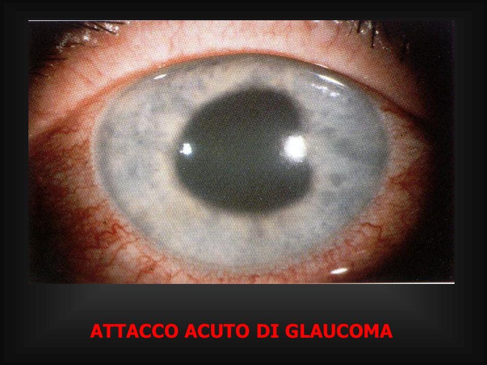 ATTACCO ACUTO DI GLAUCOMA