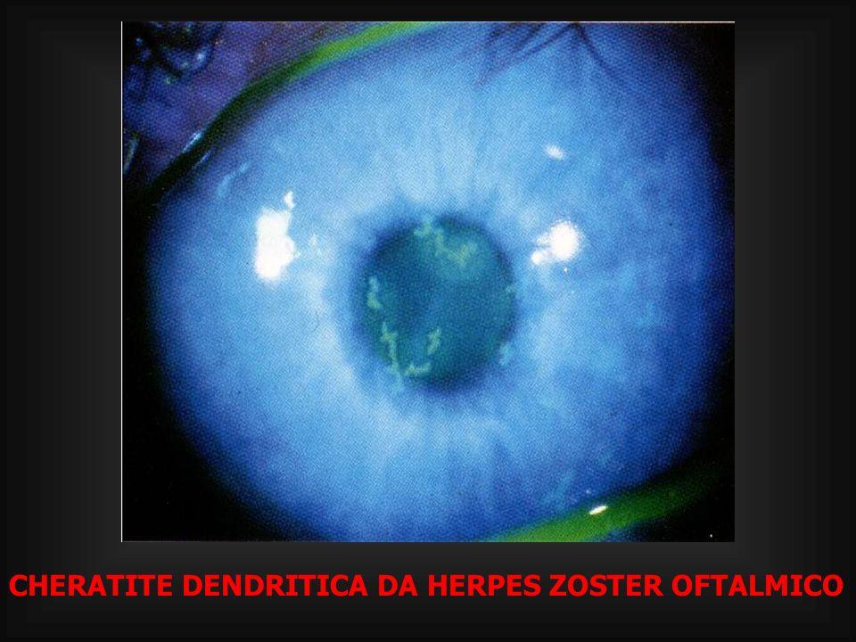 CHERATITE DENDRITICA DA HERPES ZOSTER OFTALMICO