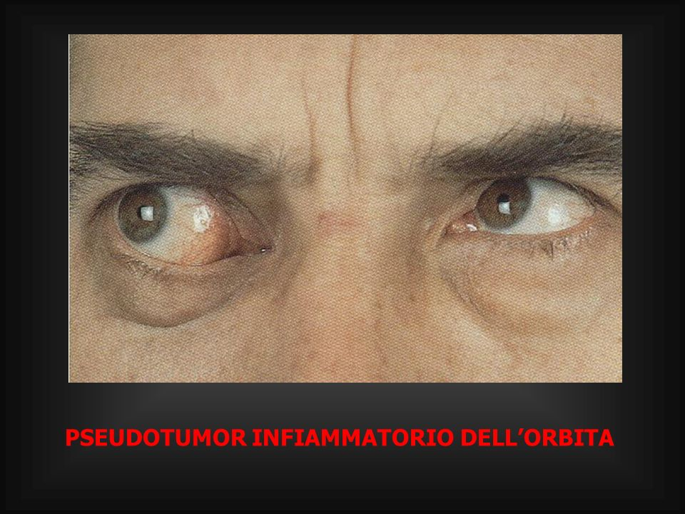 PATOLOGIA ORBITARIA VASCOLARE CORRELATA A DOLORE CEFALICO E DEFICIT VISIVI VARICI ORBITARIE FISTOLA CAROTIDO-CAVERNOSA TROMBOSI DELLE VENE OFTALMICHE ANGIOMA CAVERNOSO ANGIOMA CAPILLARE TROMBOSI DEL SENO CAVERNOSO EMANGIOENDOTELIOMA EMANGIOPERICITOMA