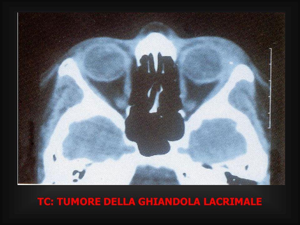 TC: TUMORE DELLA GHIANDOLA LACRIMALE