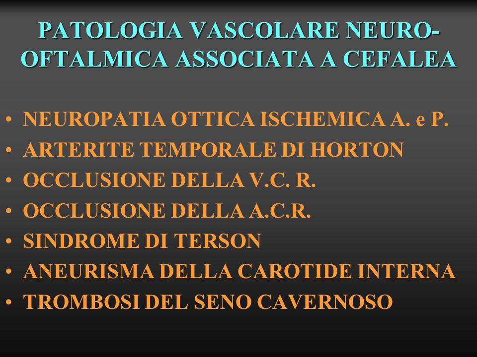 PATOLOGIA VASCOLARE NEURO- OFTALMICA ASSOCIATA A CEFALEA NEUROPATIA OTTICA ISCHEMICA A. e P. ARTERITE TEMPORALE DI HORTON OCCLUSIONE DELLA V.C. R. OCC