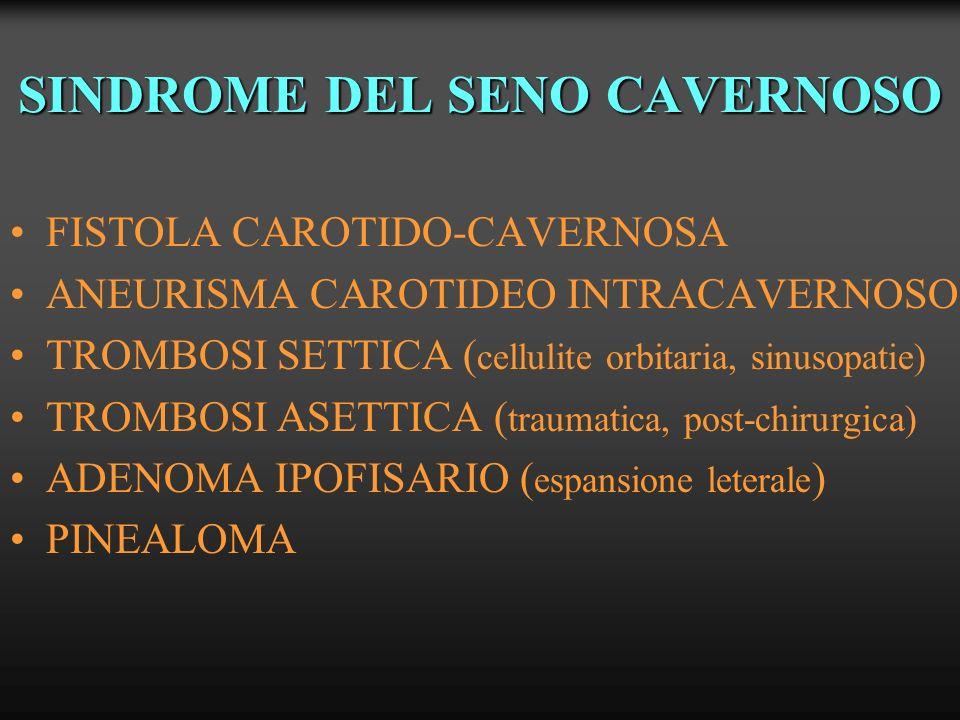 SINTOMATOLOGIA SINDROME DEL SENO CAVERNOSO interessamento III°, IV°, V°1-2, VI° nn.c ESOFTALMO DOLORE OCULARE - CEFALEA PAPILLEDEMA OFTALMOPLEGIA PARESTESIE DIFFICOLTA MASTICATORIE SINDROME DI PARINAUD