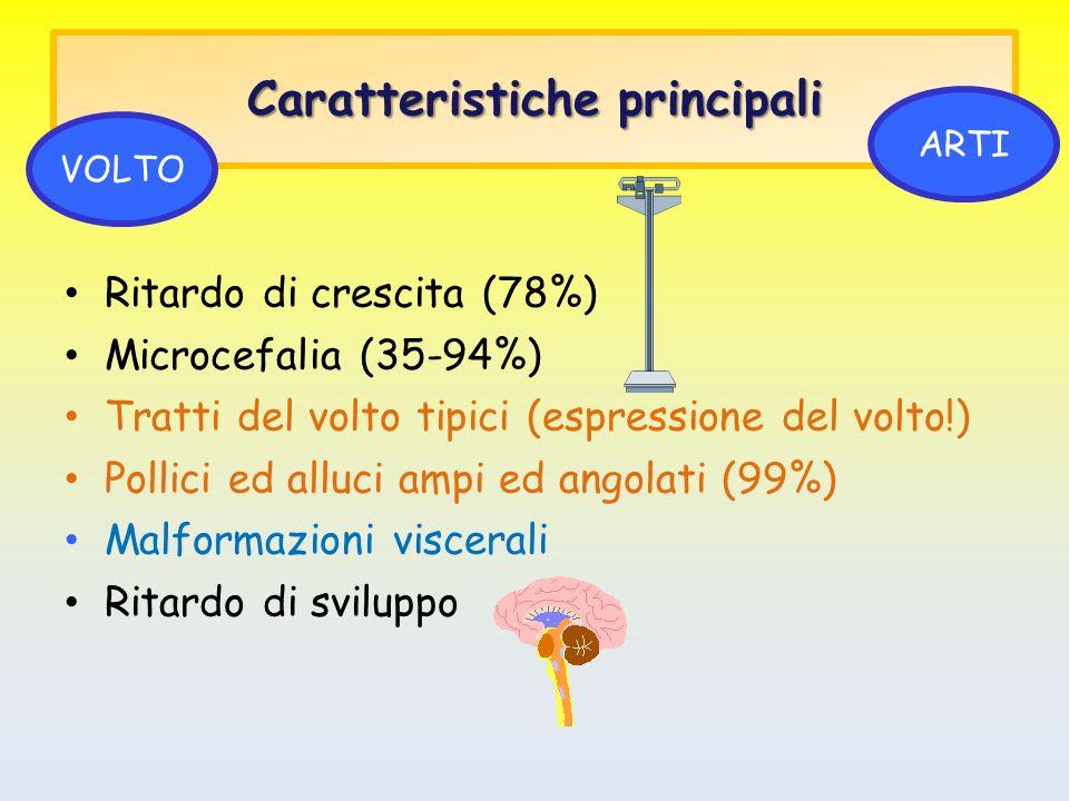 Caratteristiche principali Ritardo di crescita (78%) Microcefalia (35-94%) Tratti del volto tipici (espressione del volto!) Pollici ed alluci ampi ed