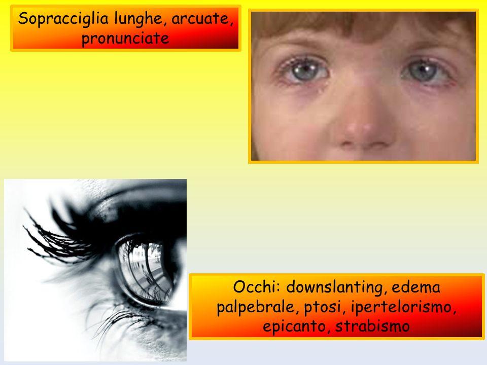Sopracciglia lunghe, arcuate, pronunciate Occhi: downslanting, edema palpebrale, ptosi, ipertelorismo, epicanto, strabismo