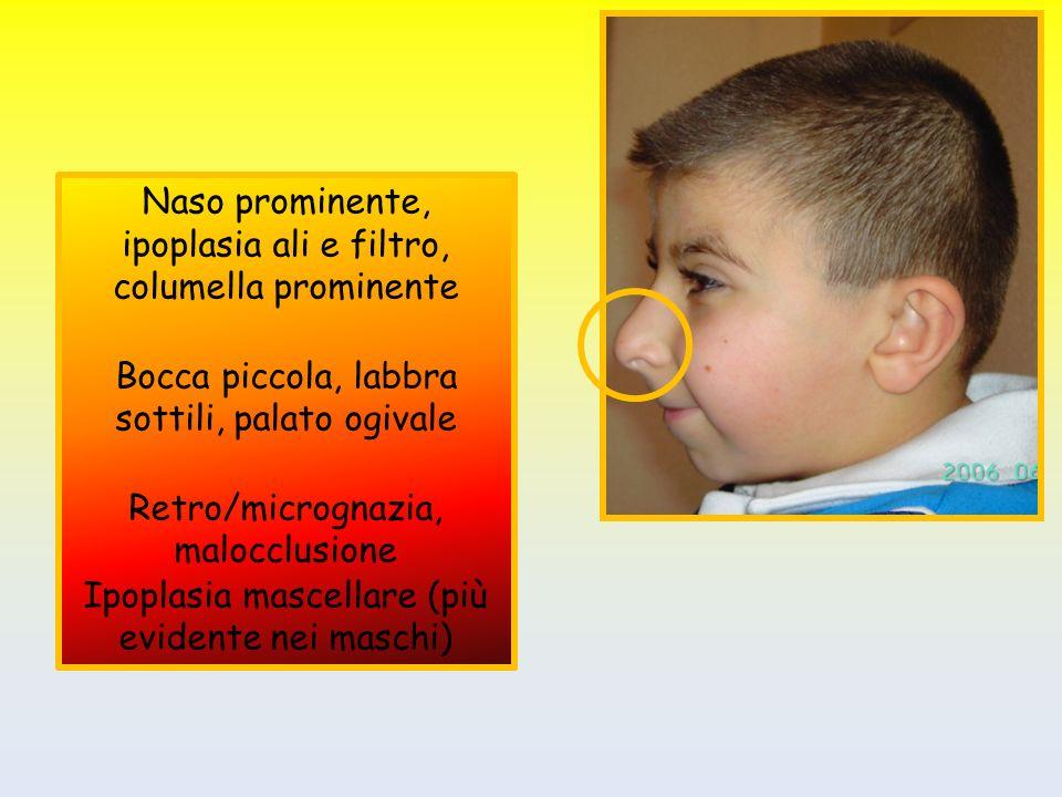 Naso prominente, ipoplasia ali e filtro, columella prominente Bocca piccola, labbra sottili, palato ogivale Retro/micrognazia, malocclusione Ipoplasia