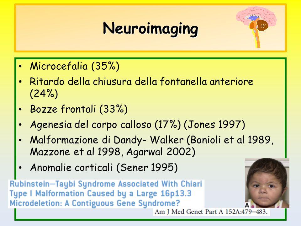 Neuroimaging Microcefalia (35%) Ritardo della chiusura della fontanella anteriore (24%) Bozze frontali (33%) Agenesia del corpo calloso (17%) (Jones 1