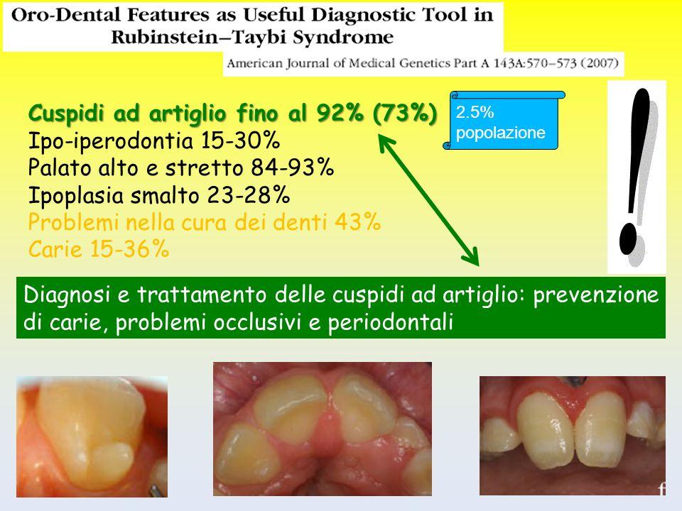 Cuspidi ad artiglio fino al 92% (73%) Ipo-iperodontia 15-30% Palato alto e stretto 84-93% Ipoplasia smalto 23-28% Problemi nella cura dei denti 43% Ca