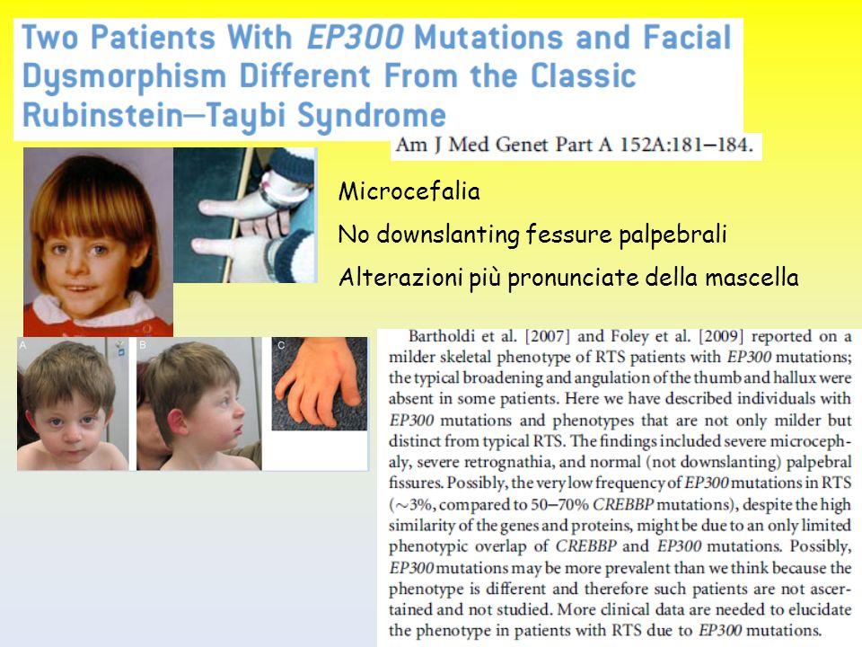 Microcefalia No downslanting fessure palpebrali Alterazioni più pronunciate della mascella