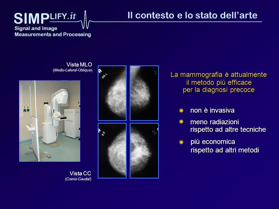 Vista CC (Cranio-Caudal) Vista MLO (Medio-Lateral-Oblique ) La mammografia è attualmente il metodo più efficace per la diagnosi precoce più economica