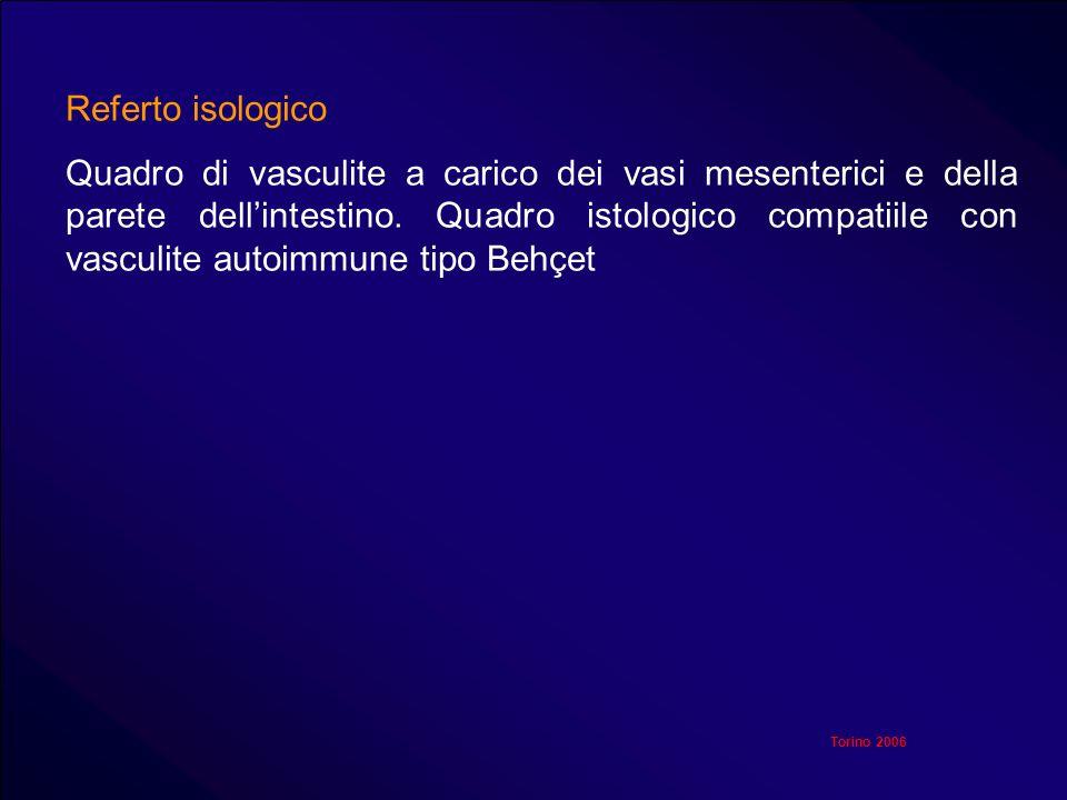 Torino 2006 Referto isologico Quadro di vasculite a carico dei vasi mesenterici e della parete dellintestino. Quadro istologico compatiile con vasculi