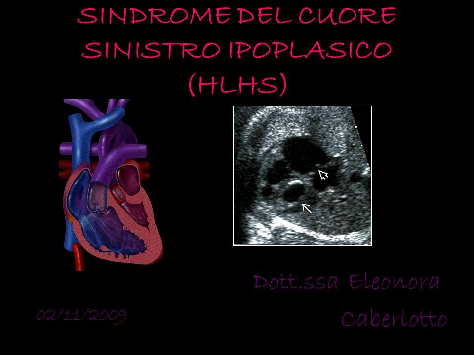SINDROME DEL CUORE SINISTRO IPOPLASICO (HLHS) Dott.ssa Eleonora Caberlotto 02/11/2009