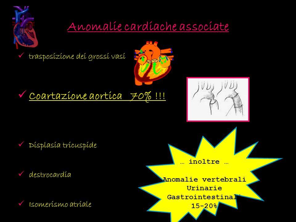 Anomalie cardiache associate trasposizione dei grossi vasi Coartazione aortica 70% !!! Displasia tricuspide destrocardia Isomerismo atriale … inoltre
