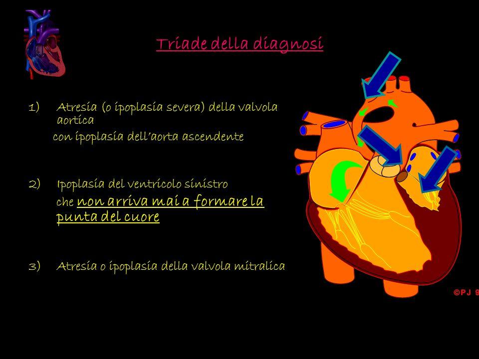 Triade della diagnosi 1)Atresia (o ipoplasia severa) della valvola aortica con ipoplasia dellaorta ascendente 2)Ipoplasia del ventricolo sinistro che