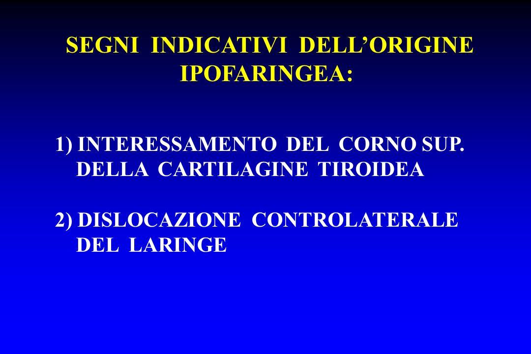 SEGNI INDICATIVI DELLORIGINE IPOFARINGEA: 1) INTERESSAMENTO DEL CORNO SUP. DELLA CARTILAGINE TIROIDEA 2) DISLOCAZIONE CONTROLATERALE DEL LARINGE