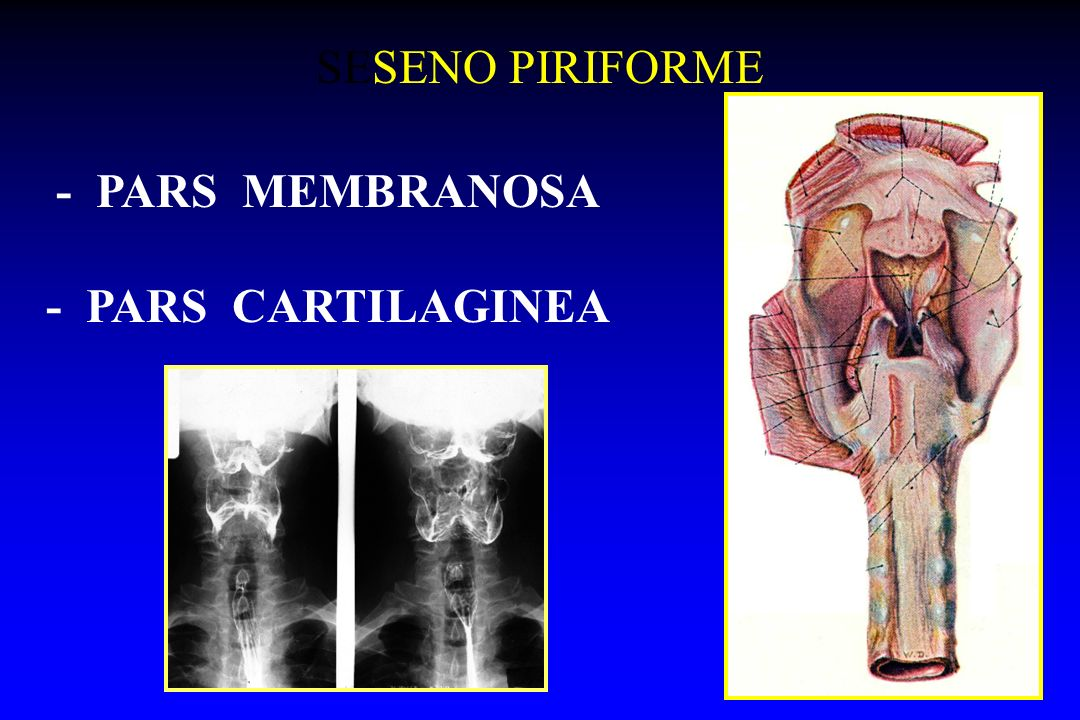 - PARS MEMBRANOSA - PARS CARTILAGINEA SESENO PIRIFORME