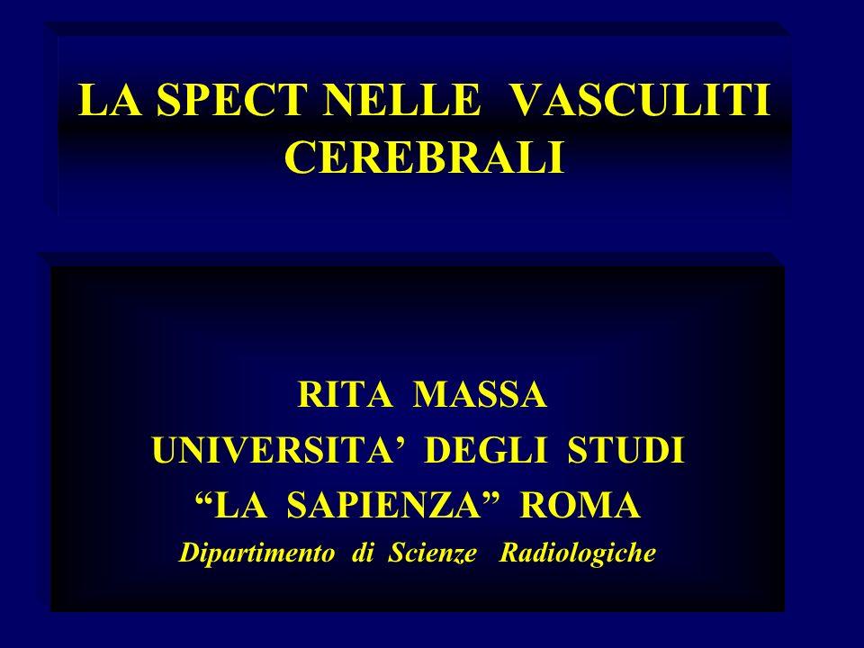 LA SPECT NELLE VASCULITI CEREBRALI RITA MASSA UNIVERSITA DEGLI STUDI LA SAPIENZA ROMA Dipartimento di Scienze Radiologiche