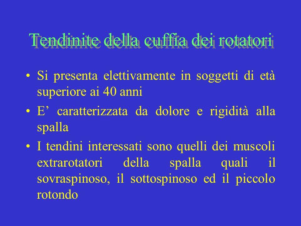 Tendinite della cuffia dei rotatori Si presenta elettivamente in soggetti di età superiore ai 40 anni E caratterizzata da dolore e rigidità alla spall