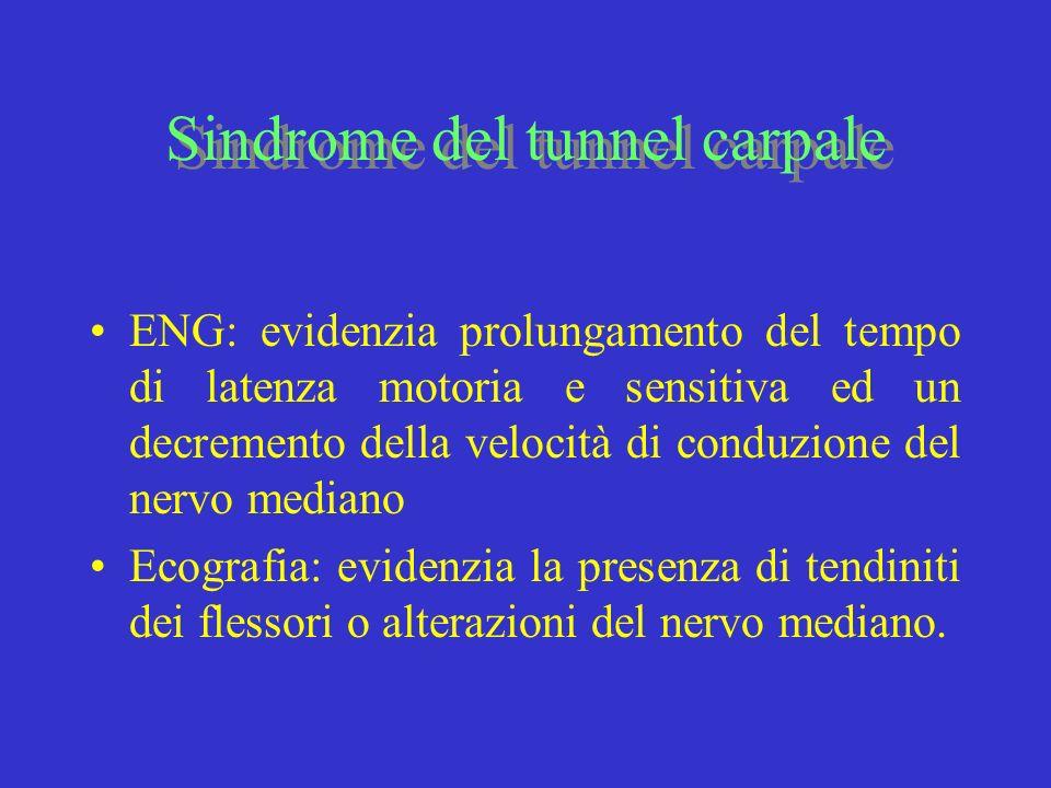 Sindrome del tunnel carpale ENG: evidenzia prolungamento del tempo di latenza motoria e sensitiva ed un decremento della velocità di conduzione del ne