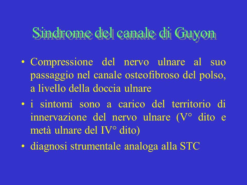Sindrome del canale di Guyon Compressione del nervo ulnare al suo passaggio nel canale osteofibroso del polso, a livello della doccia ulnare i sintomi