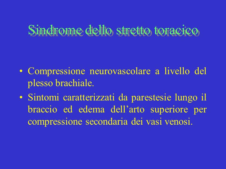 Sindrome dello stretto toracico Compressione neurovascolare a livello del plesso brachiale. Sintomi caratterizzati da parestesie lungo il braccio ed e