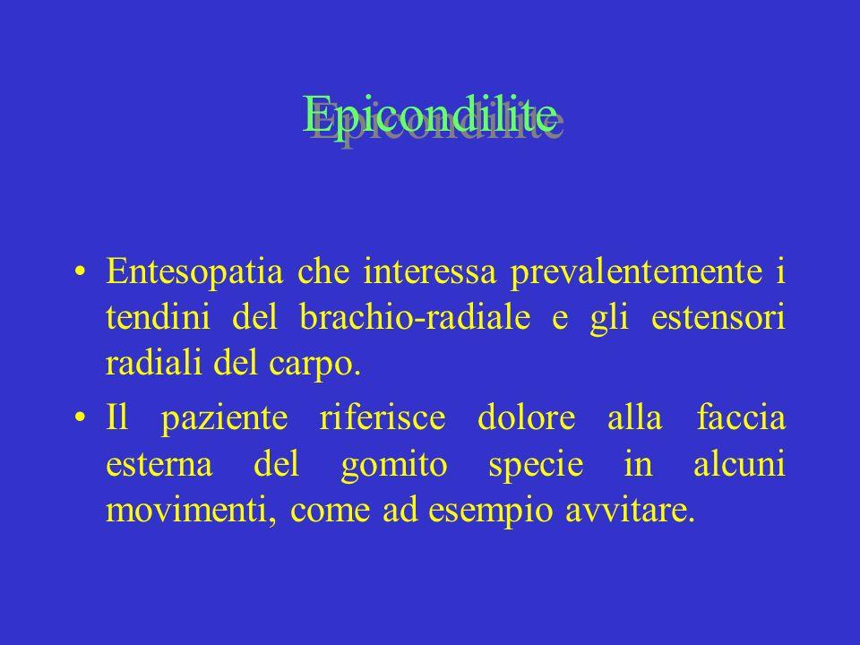 Epicondilite Entesopatia che interessa prevalentemente i tendini del brachio-radiale e gli estensori radiali del carpo. Il paziente riferisce dolore a