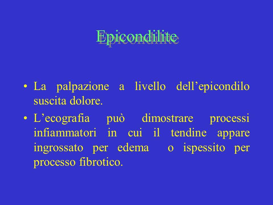 Epicondilite La palpazione a livello dellepicondilo suscita dolore. Lecografia può dimostrare processi infiammatori in cui il tendine appare ingrossat