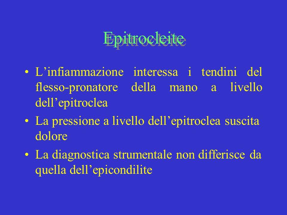 Epitrocleite Linfiammazione interessa i tendini del flesso-pronatore della mano a livello dellepitroclea La pressione a livello dellepitroclea suscita