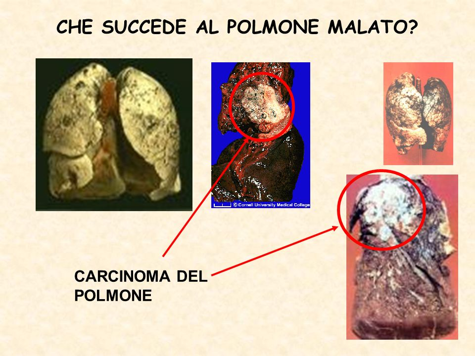 CHE SUCCEDE AL POLMONE MALATO? CARCINOMA DEL POLMONE