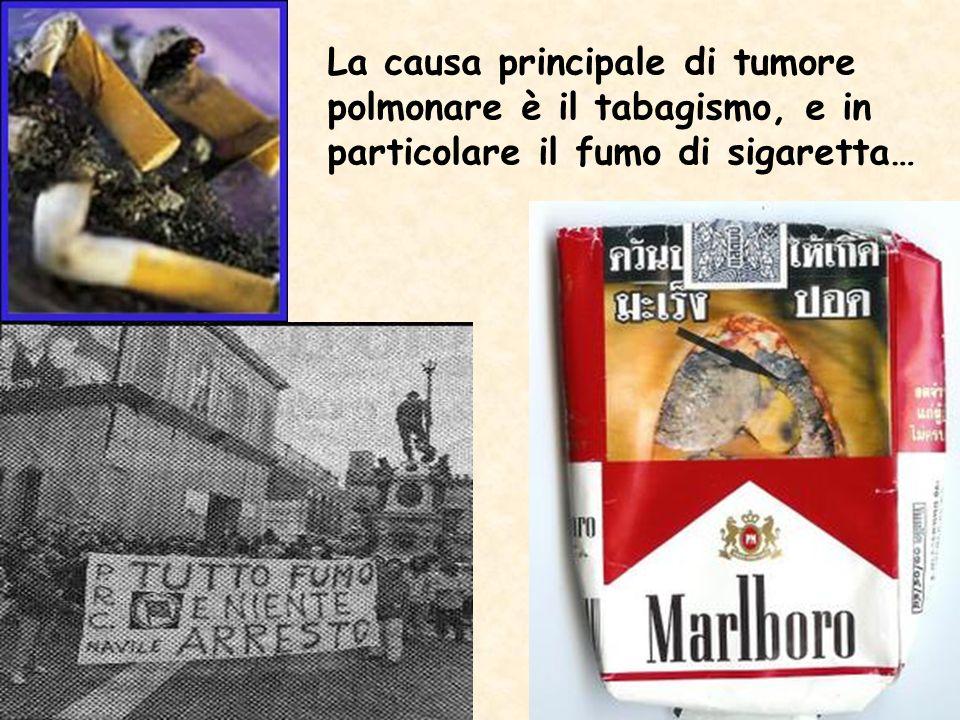 La causa principale di tumore polmonare è il tabagismo, e in particolare il fumo di sigaretta…
